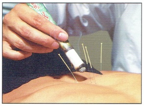 Acupuncture Moxa